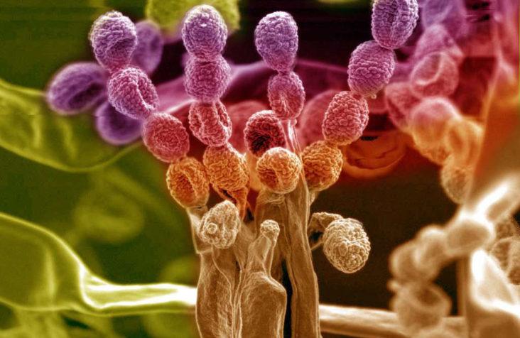 Les moisissures sur les murs : quels risques pour la santé ?